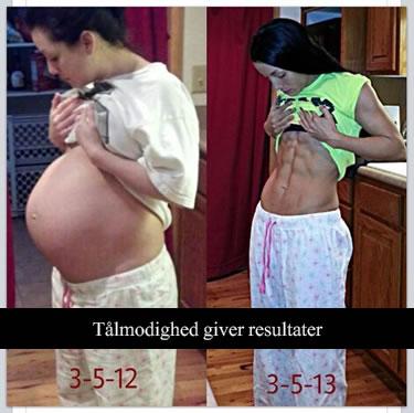 Efter fødsel mave